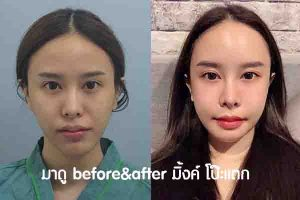 before&after มิ้งค์ โป๊ะแตก